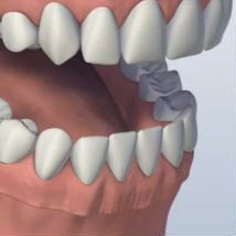 all-on-four-teeth-replacement-charlotte-oral-surgeons-sq